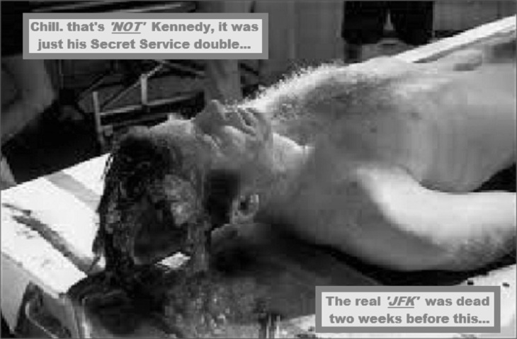 Fake Kennedy autopsy black and white