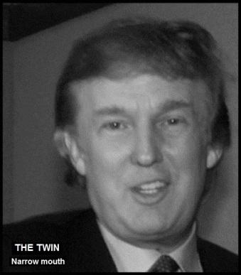 Trump twin NARROW MOUTH THE TWIN